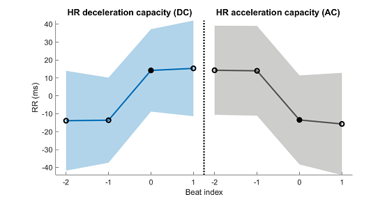 Deceleration capacity (DC) of heart rate