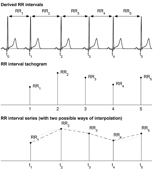 Inter-beat interval (IBI) time series
