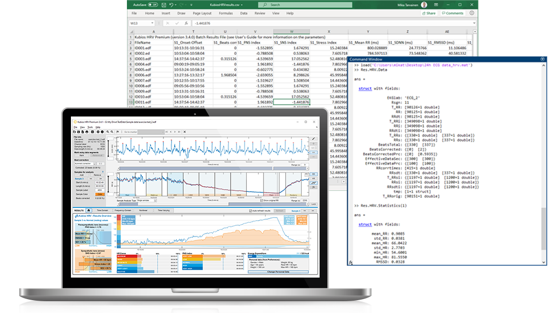 Kubios HRV software designed for researchers